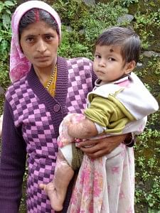 Prati with her mother, another victim of 2013 Uttarakhand Disaster from Ghat Village in Chamoli Distt