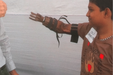 shivkumar-prosthetic-limb-helping-hands