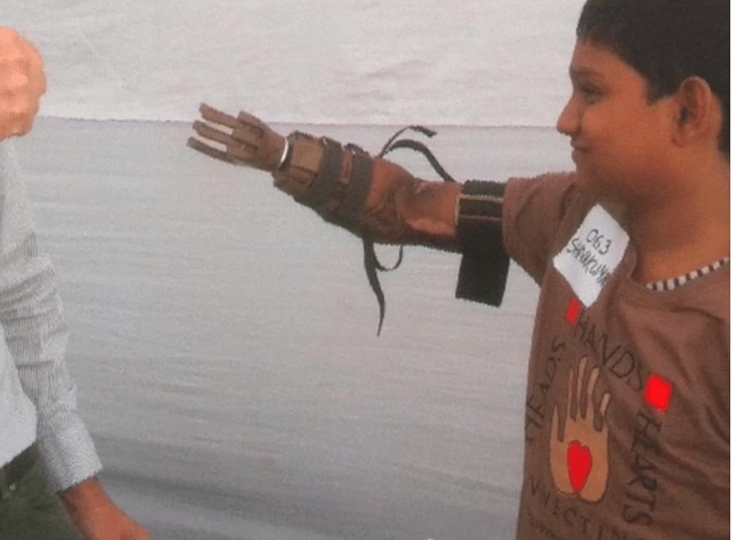 shivkumar-prosthetic-limb-helping-hands