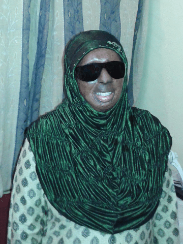 Haseena Hussain is today inspiration to other acid attack survivors.