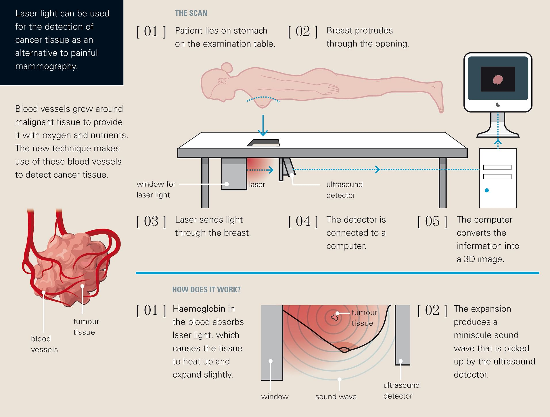 Schematic of Photo Acoustic Mammoscope Courtesy: Schwandt Infographics BV, The Netherlands.
