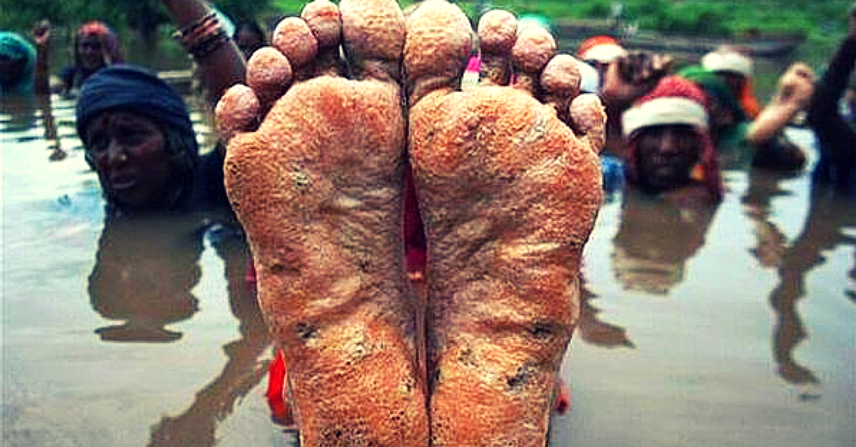 After 32 days of protesting in water – Jal Satyagraha is peeling off soles, not determination