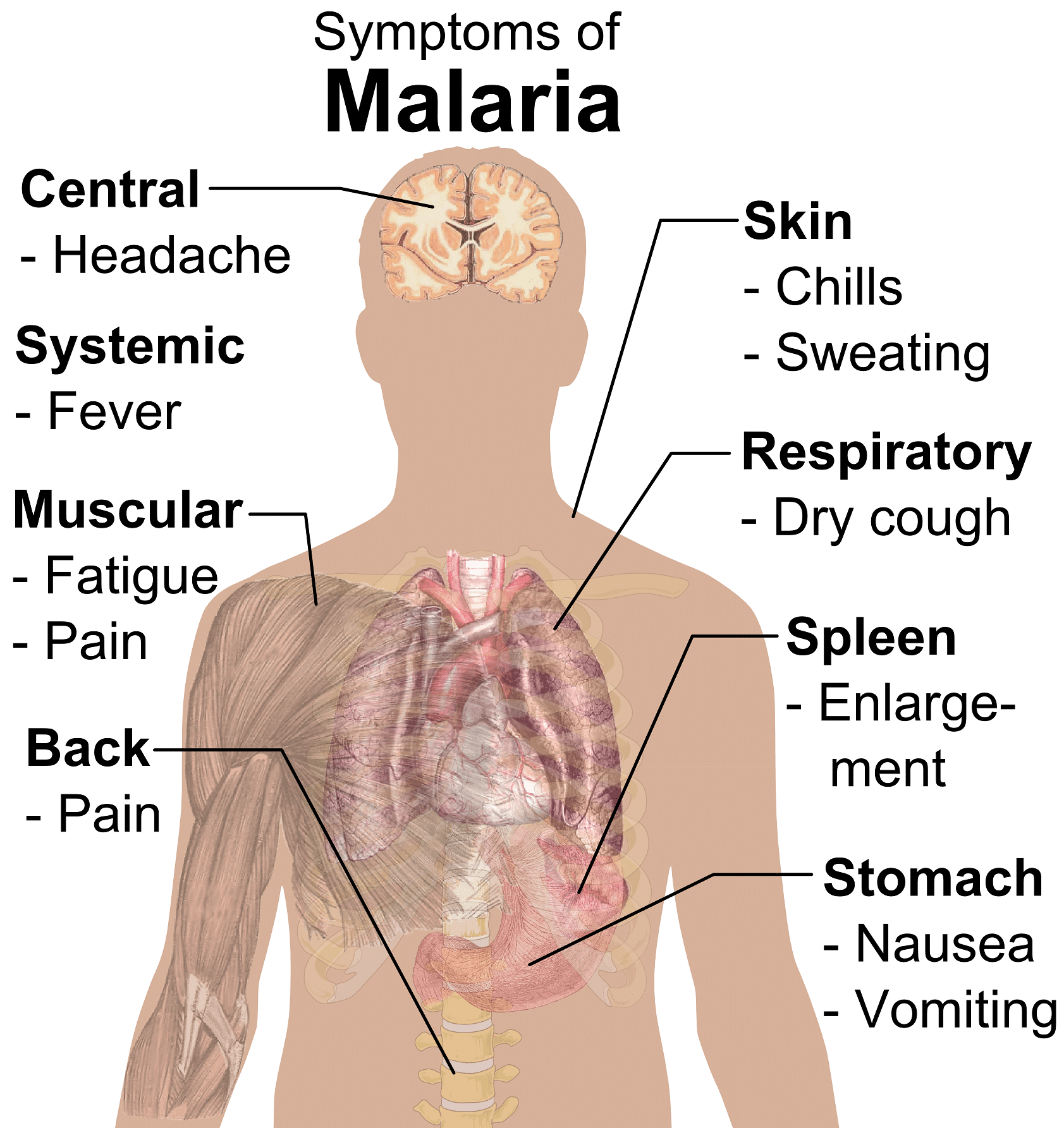 Symptoms_of_Malaria