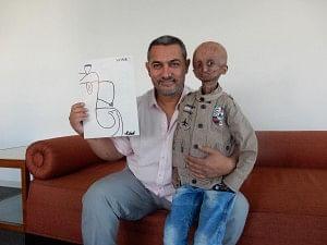 aamir khan progeria