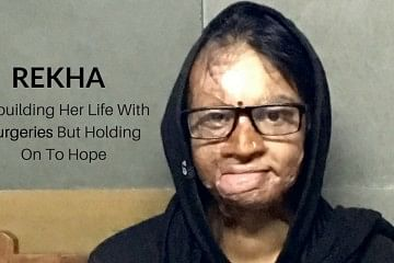 Rekha acid attack