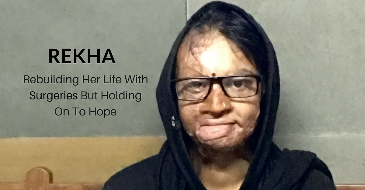 TBI BLOGS: How Acid Attack Survivor Rekha Is Rebuilding Her Life after 6 Painful Surgeries