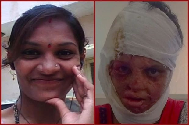 Rekha before and soon after the acid attack