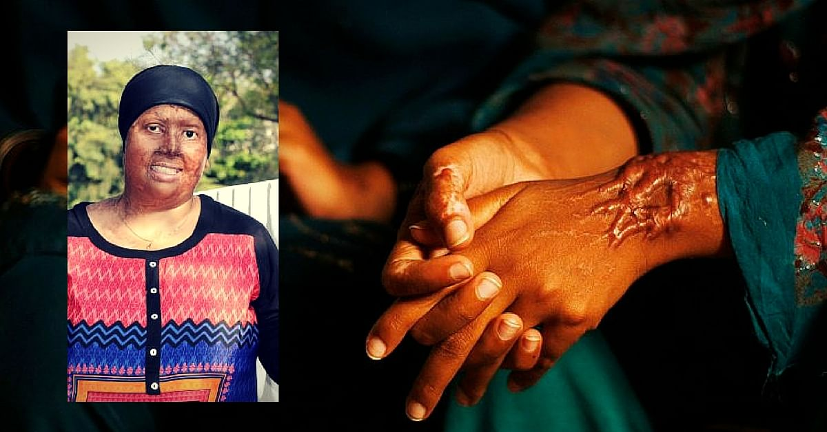 Pradnya Singh, an acid attack survivor herself spreads awareness about skin donation.