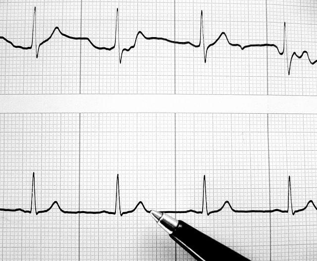 heartbeat_p