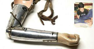 Delhi High Court - prosthetic arm
