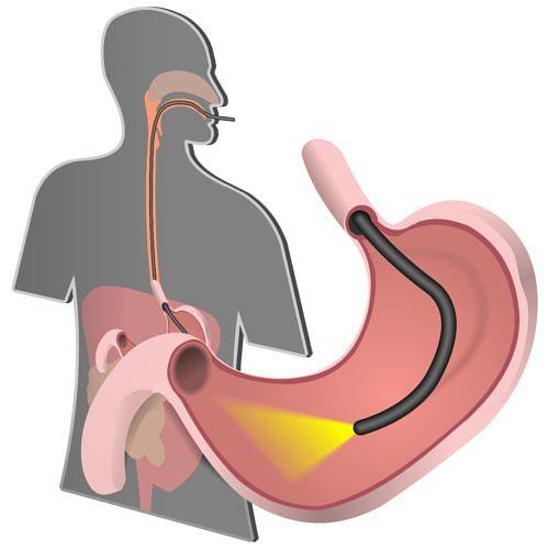 endoscopy technique minimum invasive surgery