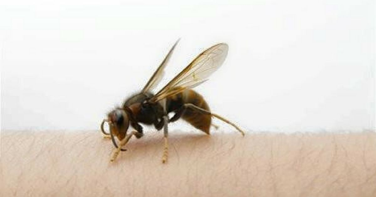 A bee sting can be painful, and first aid can alleviate some of the suffering. Image Credit: Pestworld