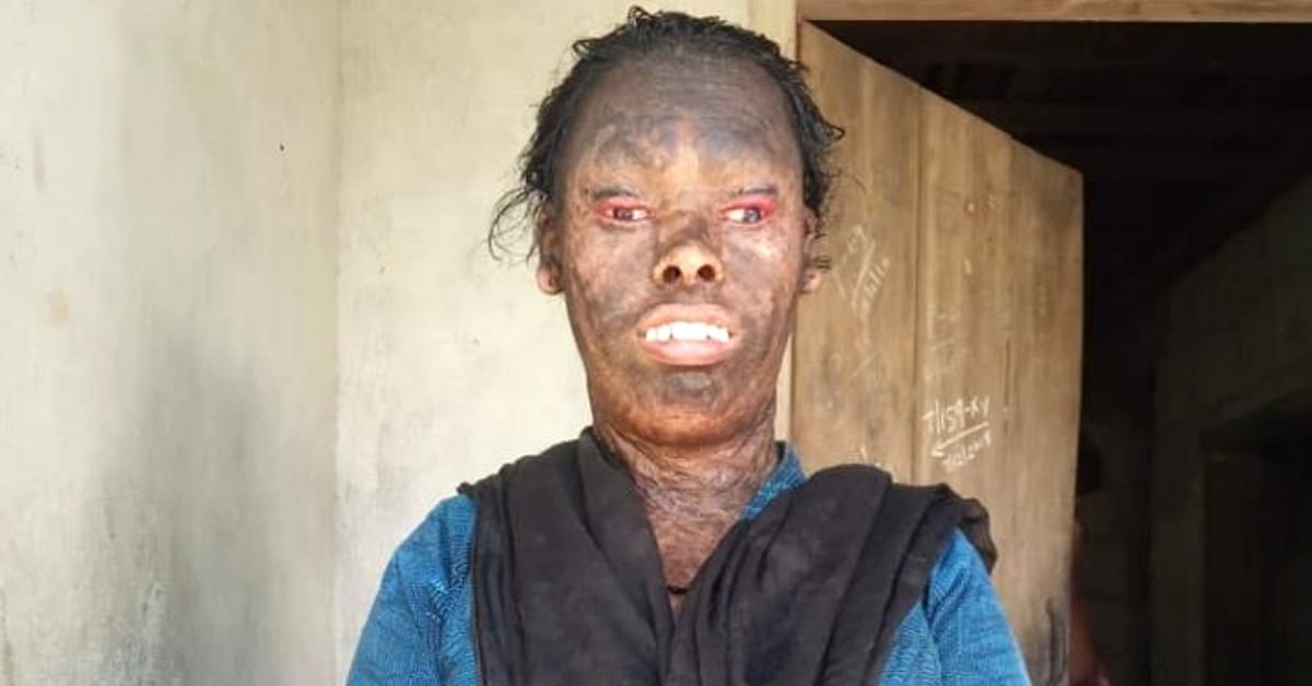 Ridiculed For Her Face, Kerala Woman Is Fighting Her Destiny & Needs Your Help