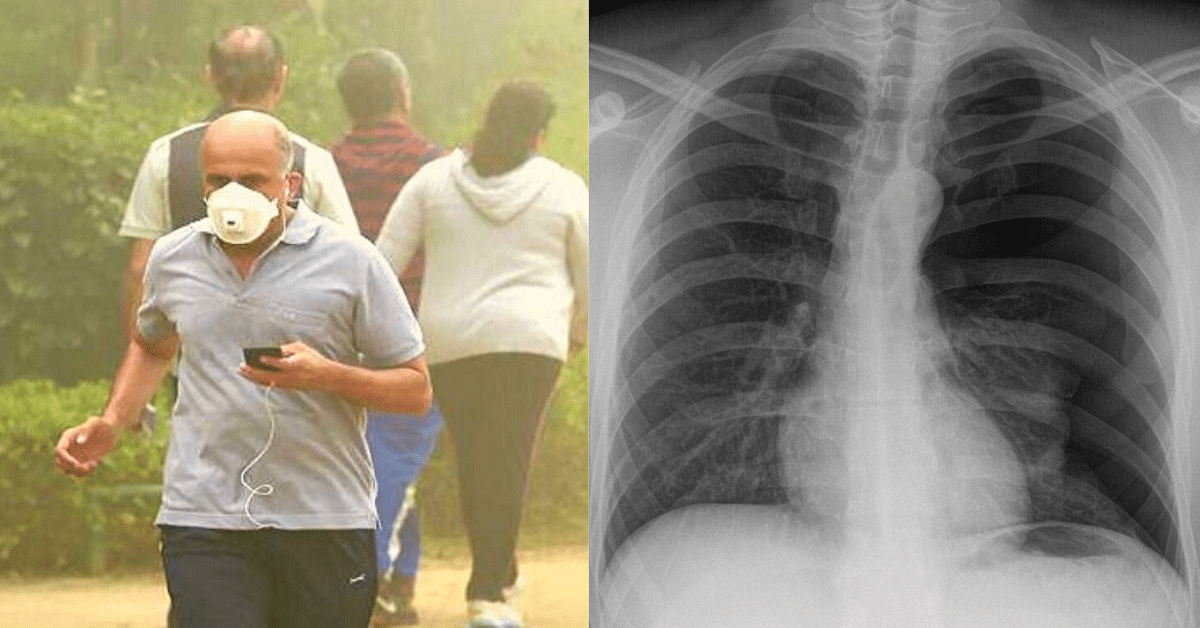 COPD: All you need to know About The Lung Disease That's Killed Millions in India