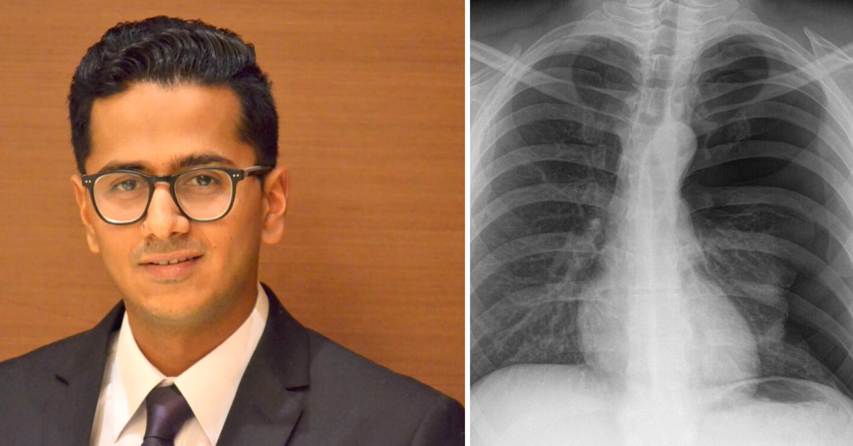 Back Pain May Be Linked to Lung Cancer? 6 Common Signs That You May Be at Risk