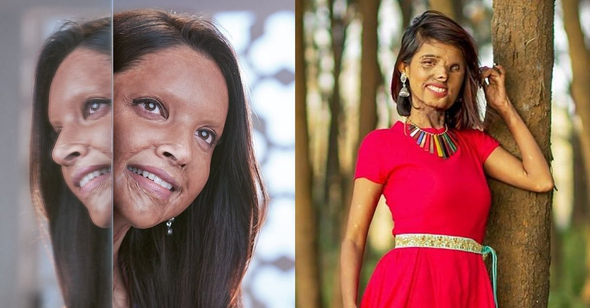 Chhapaak: 5 Acid Attack Survivors Whose Unbreakable Determination Inspires Us