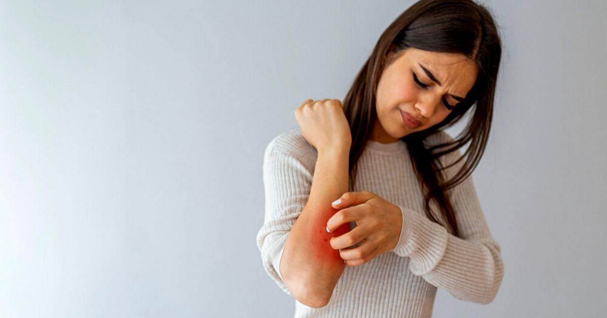 Have Eczema? Here Are the Foods to Avoid and What Will Soothe Your Skin