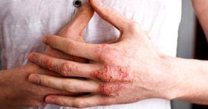 hand eczema detergents