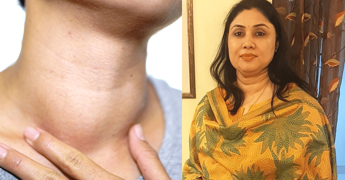 Is Thyroid Making Me Gain Weight? 9 Myths Debunked by a Doctor